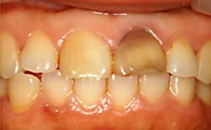 歯内漂白処置前