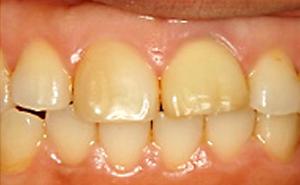歯内漂白処置後