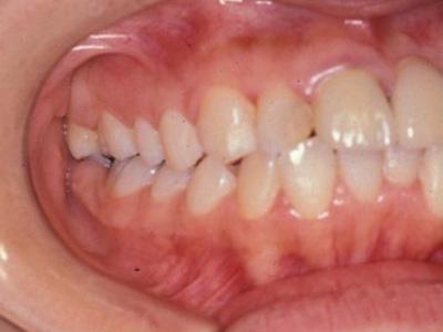 う蝕(虫歯)の治療1