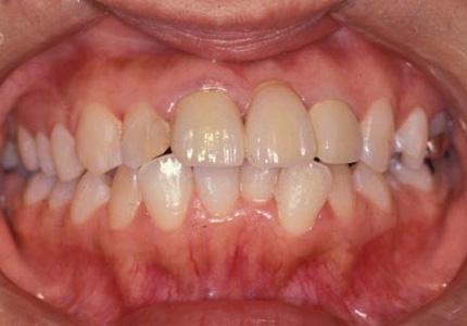 う蝕(虫歯)の治療2