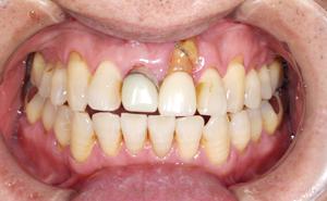 抜歯即時インプラント治療前