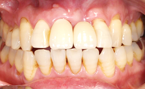 抜歯即時インプラント治療後