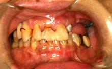 審美義歯1