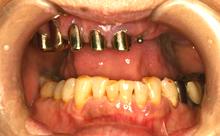 審美義歯2