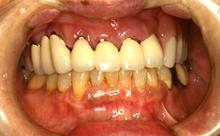 審美義歯3