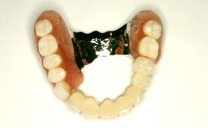 審美義歯4