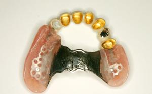 審美義歯5