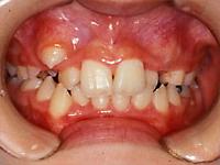 Case1 叢生(ガタガタの歯並び)の治療例1