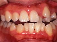 Case3 開咬(奥歯を咬んでも前歯が当たらない)の治療例1