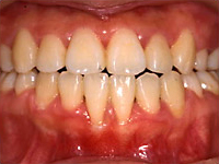 Case3 開咬(奥歯を咬んでも前歯が当たらない)の治療例2