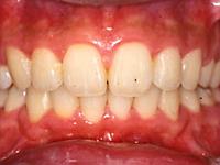 上顎前突(出っ歯)の治療例